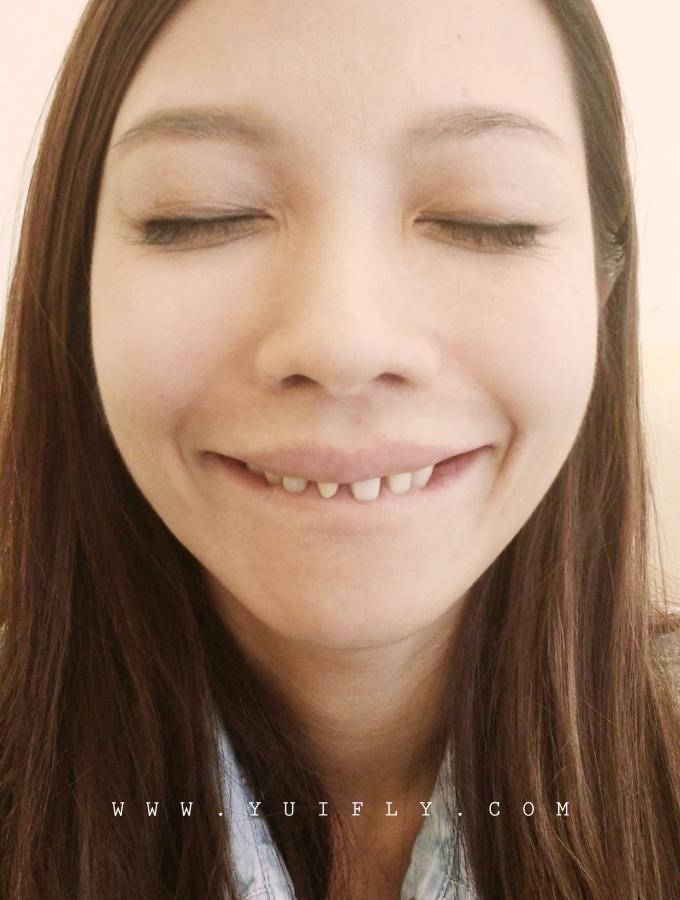 悅庭牙醫_18.jpg
