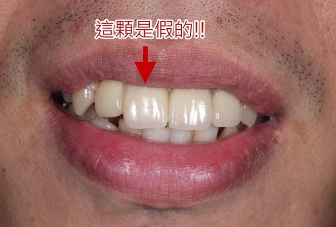 悅庭牙醫_27.jpg