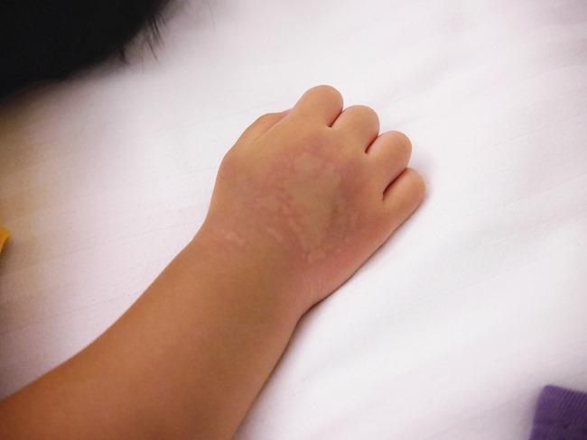 1Y11M。令人百思不得其解的「蕁麻疹」