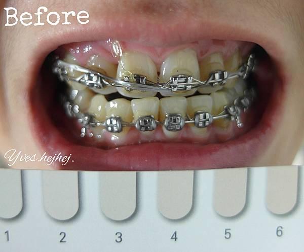 【牙齒齒白】誰說戴牙套不能亮白牙齒? 每一次刷牙都是齒白的開始 Li-ZEY 萊思 藍光光速白牙膏_極致齒白系列