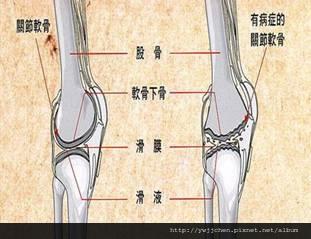 預防退化性膝關節炎-05