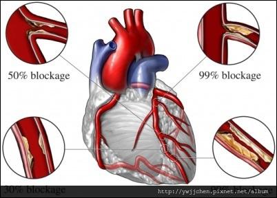 心血管食療-01