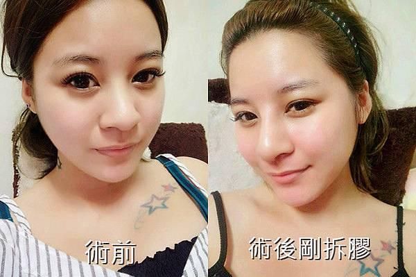 358056_meitu_16-tile_meitu_5.jpg