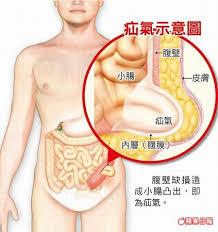 台北疝氣手術中心